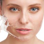Chemický peeling odstraňuje vrstvu odumretých buniek, obnovuje štruktúru a tón pleti, zmierňuje množstvo baktérií a nadbytočného séba, podporuje tvorbu kolagénu a ...